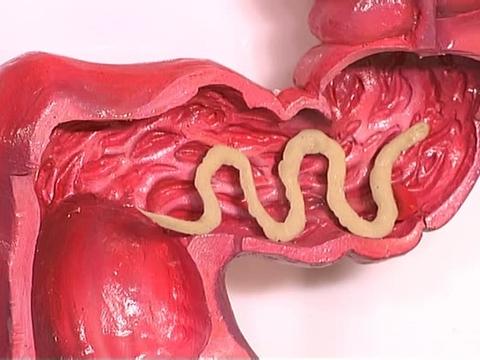 как вылечить паразитов в организме